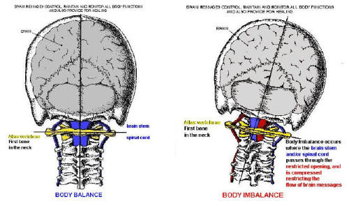 Neck Pain: Just a Chiropractic Adjustment Away - Los ...